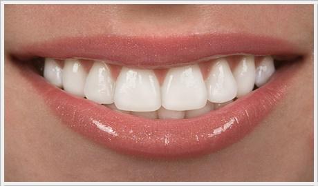 Ankara lamine diş kaplama fiyatları