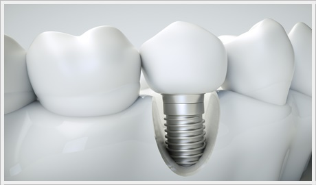 Ankara dental implant