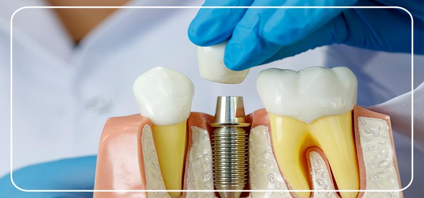 Ankara dental implant