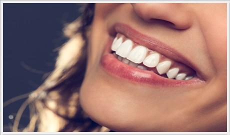 Ankara diş beyazlatma