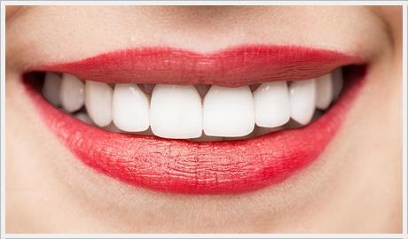 diş kaplama çeşitleri