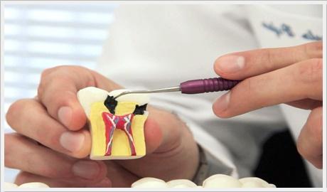 Ankara endodonti