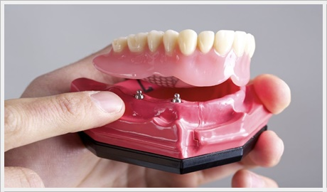 implant üstü özel protez