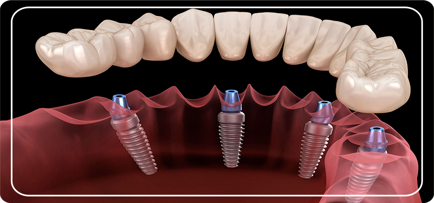 implant üstü özel protezler