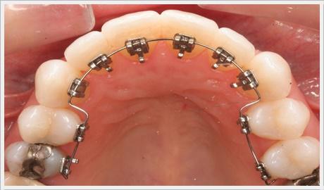 Ankara ortodonti