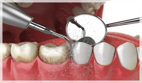 Diş taşı temizliği sonrası