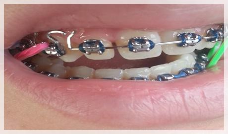 Diş teli varken diş beyazlatma