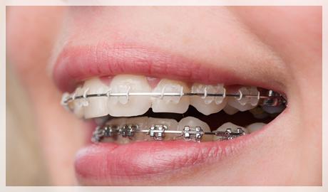 Diş teli varken diş taşı temizliği