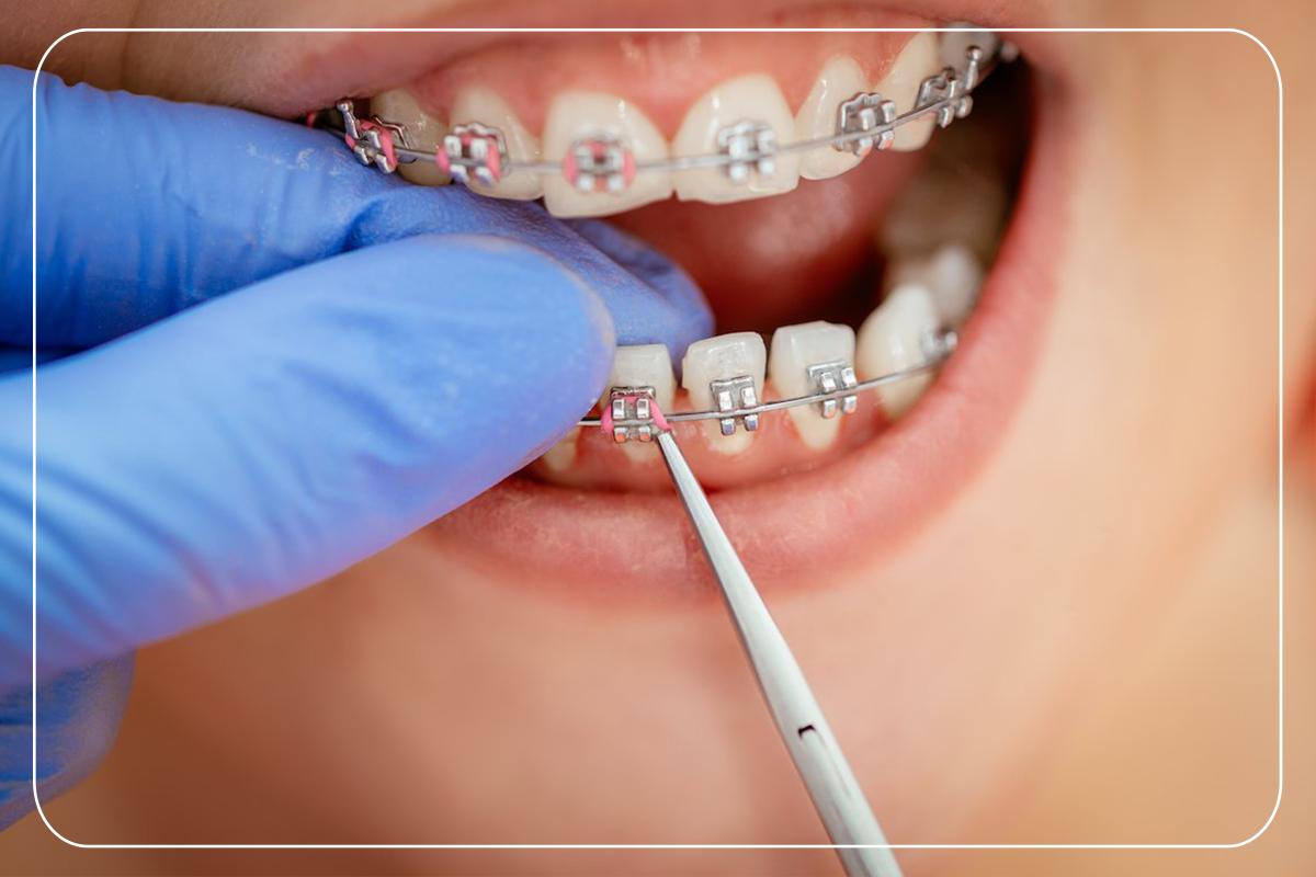 Diş Teli Bakım Önerileri