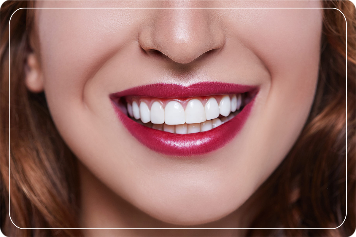 Hollywood Smile Nedir