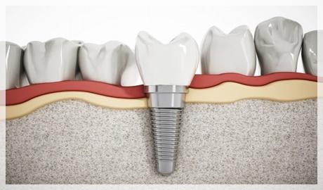 Diş implant fiyatları