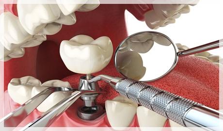 Üst çeneye kaç implant gerekir?