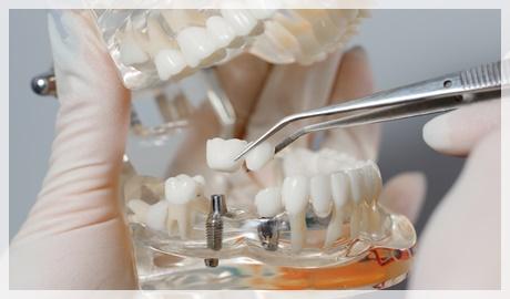 Implant nedir kimlere implant uygulanabilir?