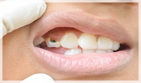 Implant diş çürür mü?