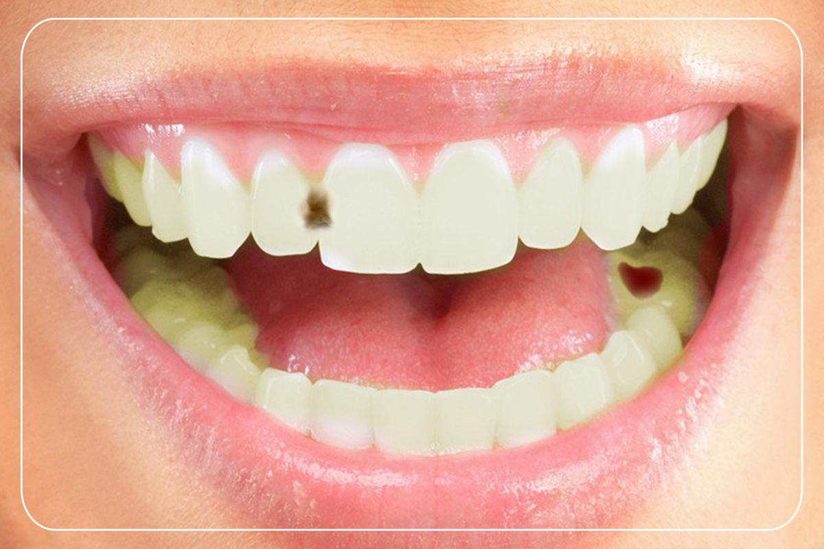Kaplama Yapılan Dişler Çürür Mü?